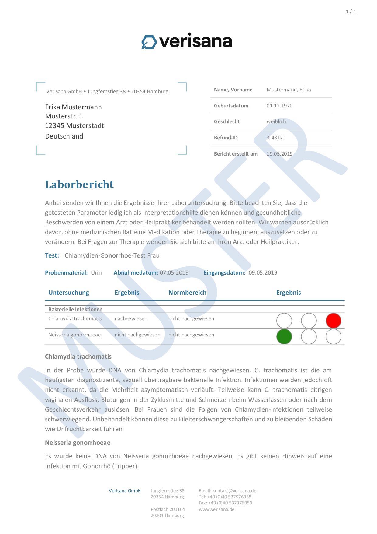 Chlamydien-Gonorrhoe-Test Frau Muster