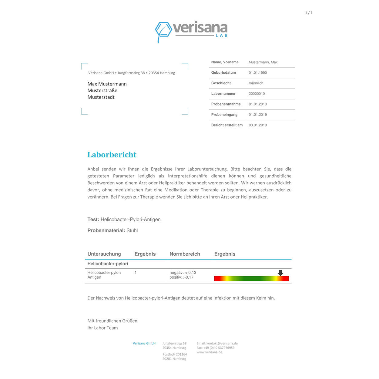 Helicobacter-pylori-Antigentest, Labormusterbefund