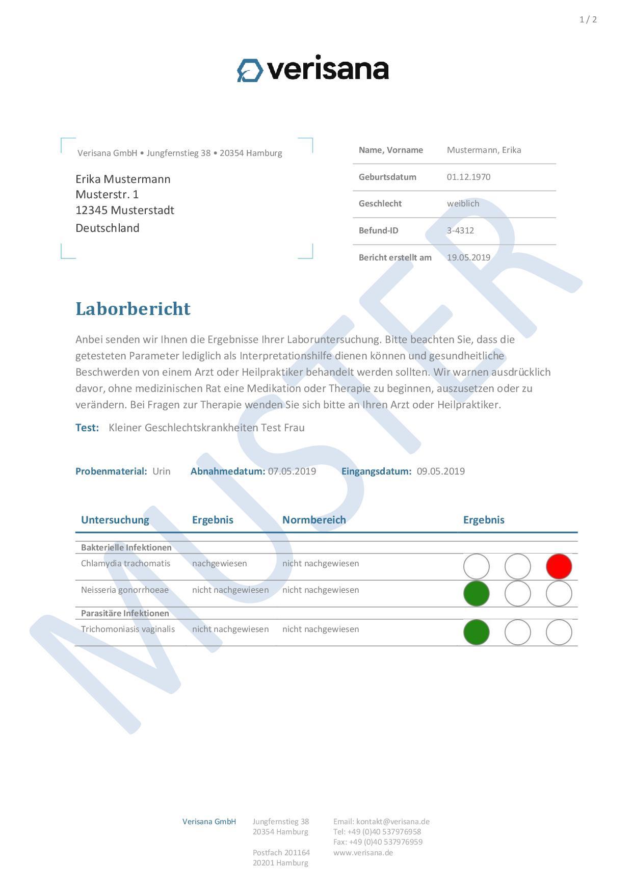 Kleiner Geschlechtskrankheiten Test (Frau) Muster 1